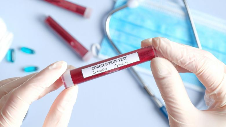 Un vaccin pentru coronavirus se află în testare în Canada. Echipa de cercetare a primit un grant de un milion de dolari